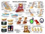 Navicular Syndrome Chart - Laminated